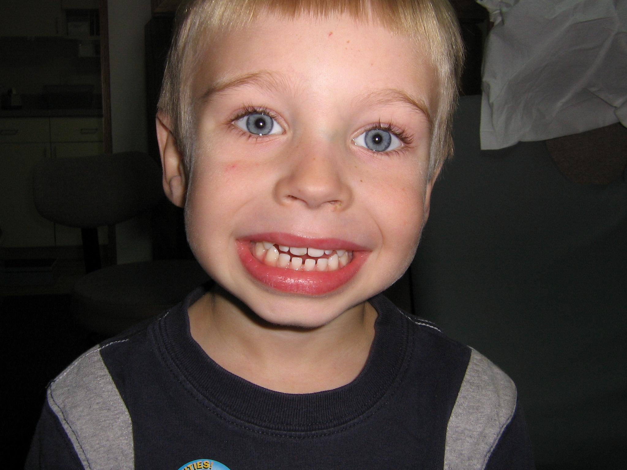 Here is a no cavity club poster boy Eli